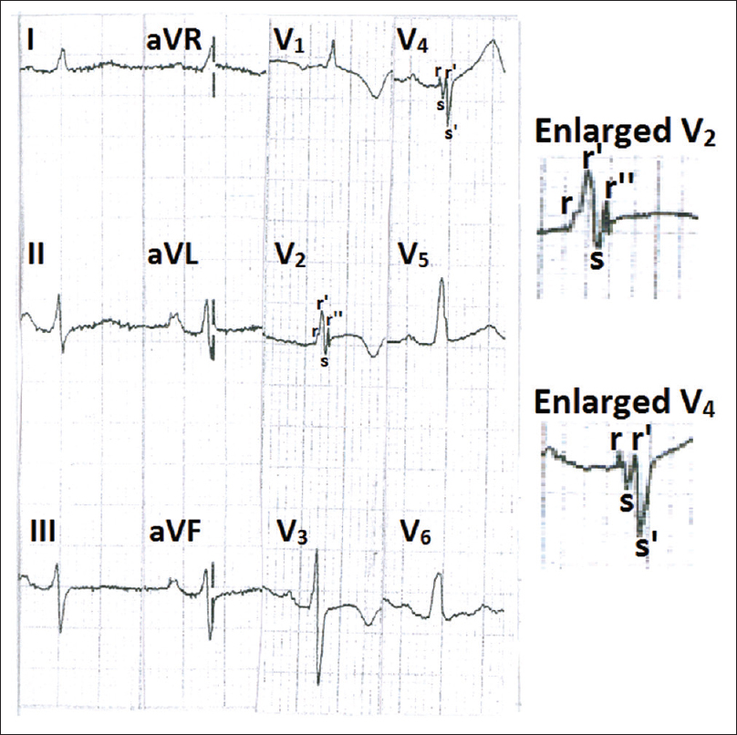 Figure 2: Electrocardiogram showing fragmented QRS in leads V<sub>2</sub> and V<sub>4</sub>