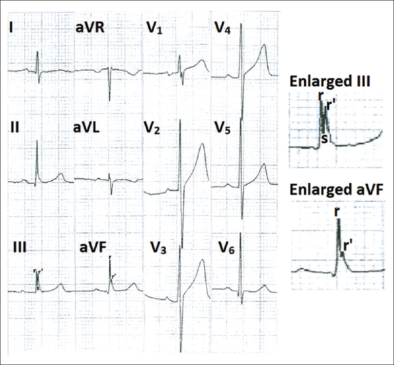 Figure 3: Electrocardiogram showing fragmented QRS in leads III and aVF