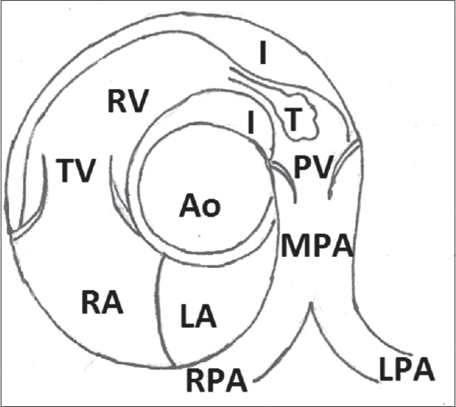 Figure 10: Diagrammatic representation of two-dimensional and color Doppler findings in short-axis view at the level of aortic root in isolated infundibular pulmonary stenosis. LA = Left atrium, RA = Right atrium, TV = Tricuspid valve, RV = Right ventricle, I = Infundibulum, T = Turbulent flow, PV = Pulmonary valve, MPA = Main pulmonary artery, RPA = Right pulmonary artery, LPA = Left pulmonary artery, Ao = Aorta