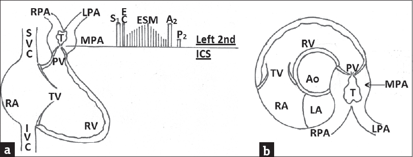 Figure 14: Diagrammatic representation of (a) Pathology and auscultatory findings in pulmonary valve stenosis. (b) Echocardiography findings in short-axis view at the level of aortic root, T = Turbulent flow