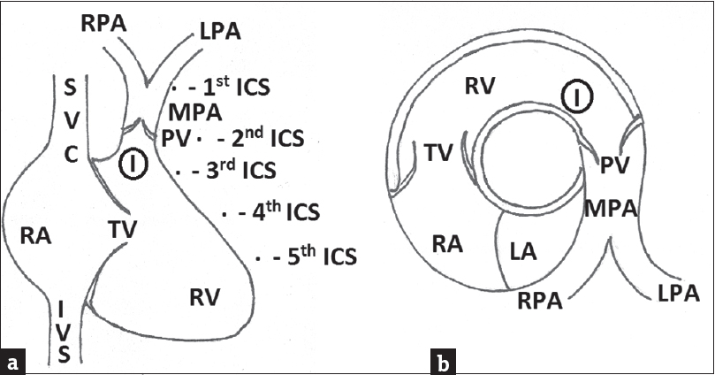 Figure 4: Diagrammatic representation of infundibulum (I) of right ventricle. (a) In frontal view (b) in short-axis view at the level of aortic root. SVC = Superior vena cava, IVC = Inferior vena cava, RA = Right atrium, TV = Tricuspid valve, RV = Right ventricle, PV = Pulmonary valve, MPA = Main pulmonary artery, RPA = Right pulmonary artery, LPA = Left pulmonary artery, LA = Left atrium, ICS = Intercostal space