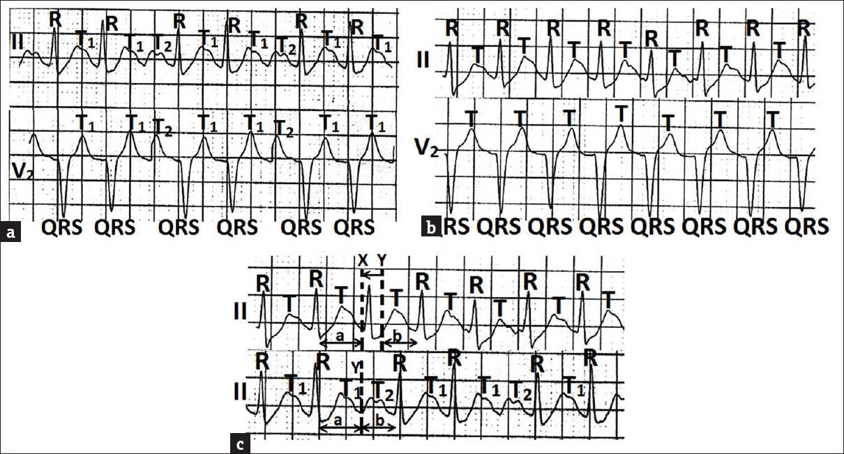 Figure 2: (a) Lead II and lead V2 of electrocardiogram from case number 2 showing two T waves (marked T1 and T2) in alternate cardiac cycle with prolongation of R-R interval. (b) Lead II and lead V2 of the second print of the same time of the stress test showing absence of second T wave. (c) Lead II of the  first and second prints placed below one another showing that the interval from the end of T1 to the onset of T2 remained unrecorded in the  first print